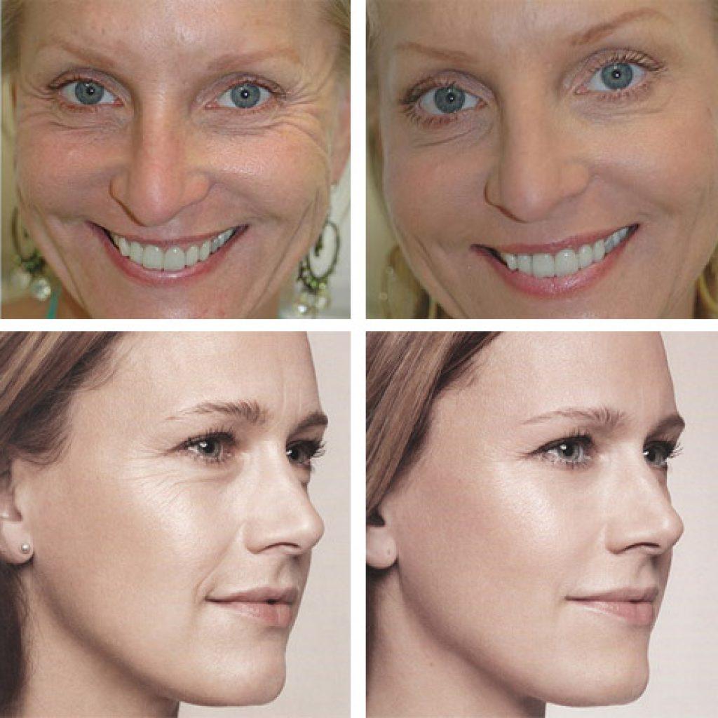Результат применения Botox