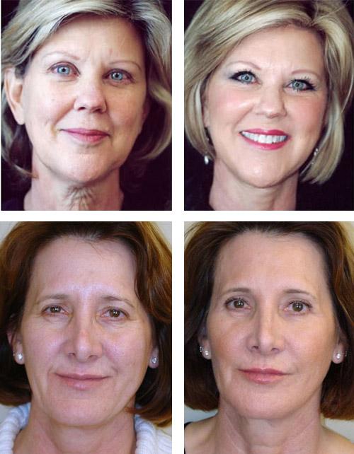 Фото до и после биоармирования