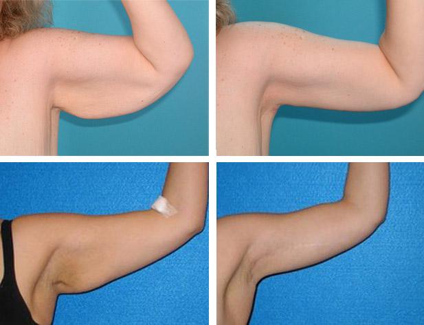 Фото до и после брахиопластики