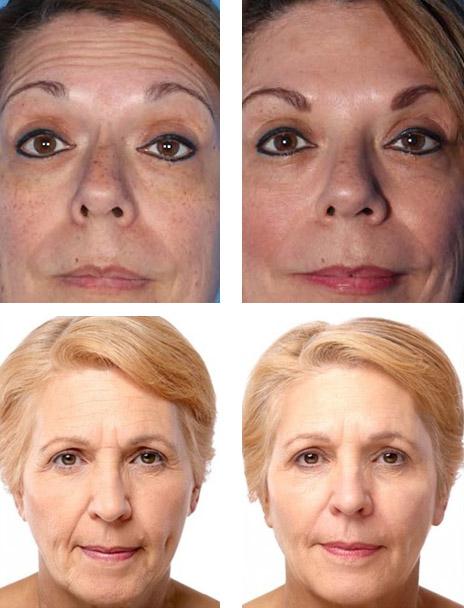 Фото до и после введения Ботокса