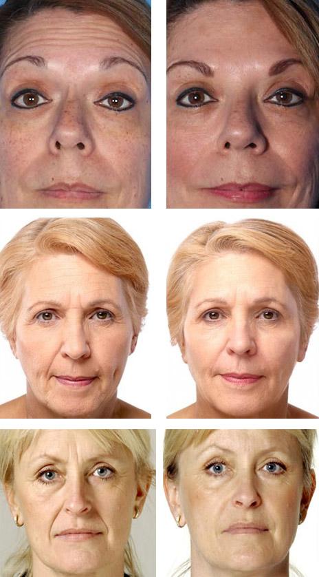 Фото до и после введения ботулотоксина