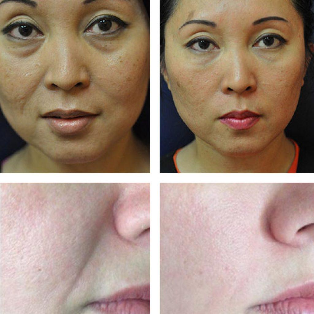 Фото до и после коррекции