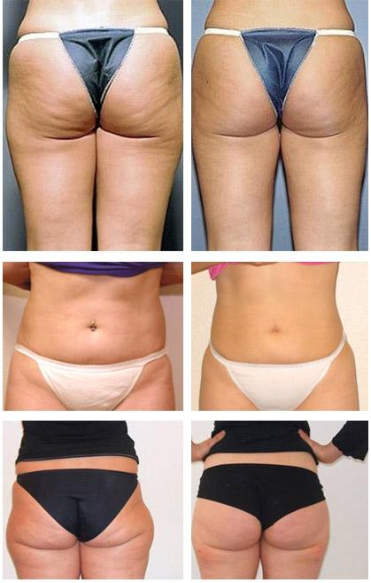 Фото до и после липоскульптуры