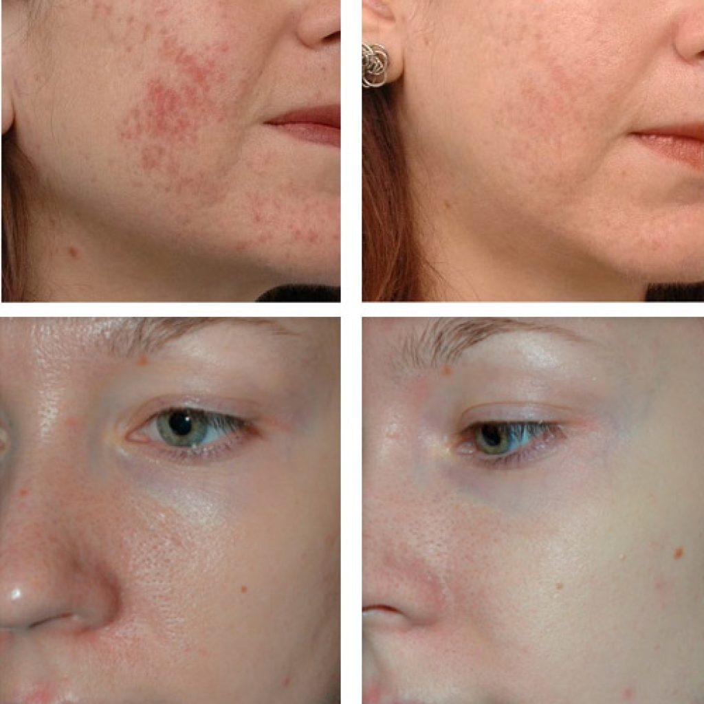 Фото до и после мезотерапии