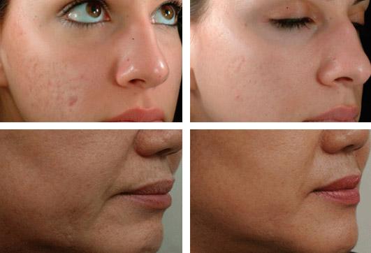 мезотерапия лица фото до и после фото