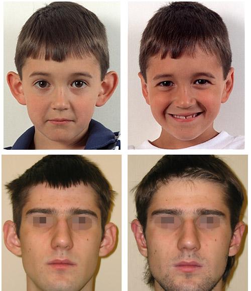 Фото до и после отопластики