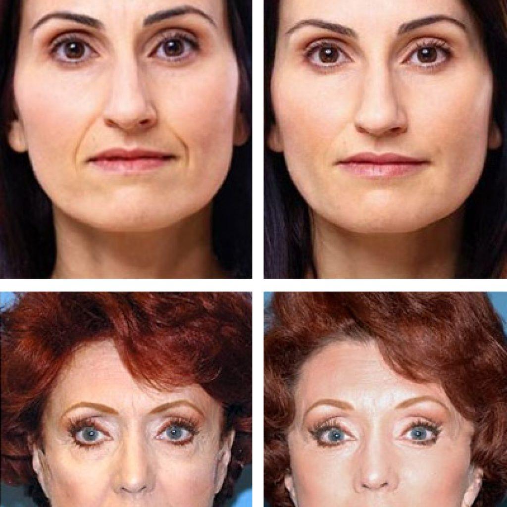 Фото до и после ревитализации