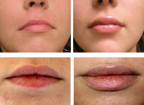 увеличение губ на 1 мл фото до и после