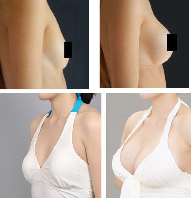 Липофилинг груди фото