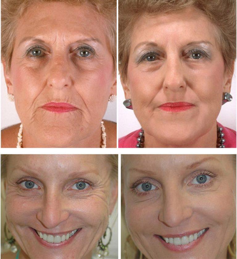 исключено, мезотерапия лица фото до и после отзывы дамы