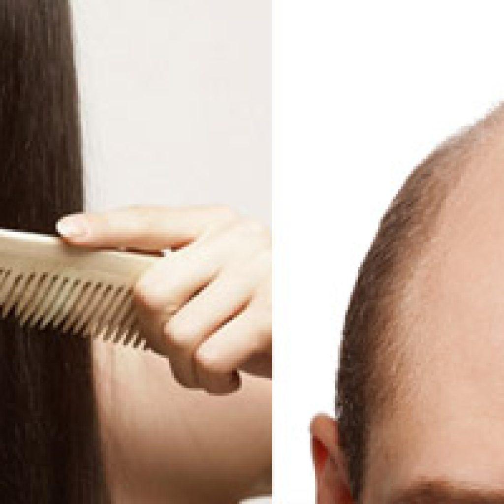 Что делать, когда выпадают волосы