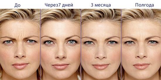 Действие Botox