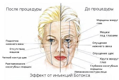 Эффективность Botox