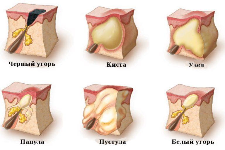 Прыщ в носу внутренний болит