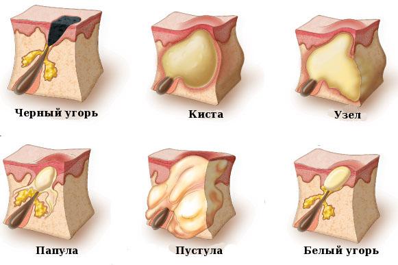Виды кожных недугов