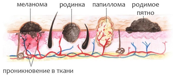 Родимые пятна на теле причины
