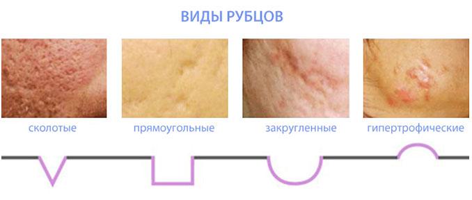 Шрамы от прыщей на лице