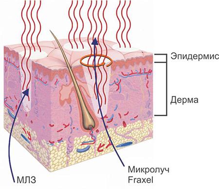 Как выровнять кожу лица после прыщей и угрей: лечение в домашних условиях, салонные процедуры