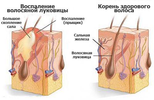 Воспаление луковицы
