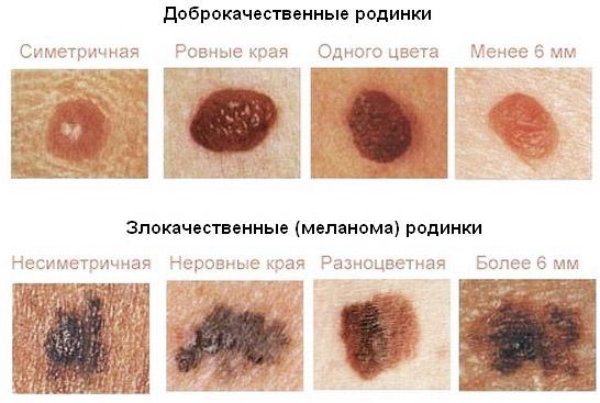 Почему образуются папилломы на шее