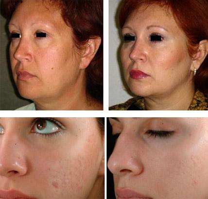 До и после оксимезотерапии