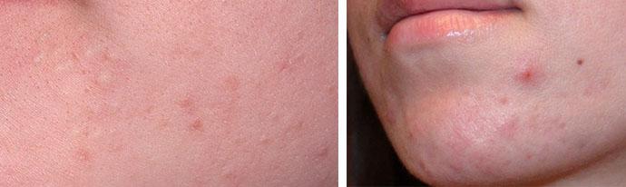Всё о кожных заболеваниях - Страница 55 из 148 - Ещё один сайт на WordPress