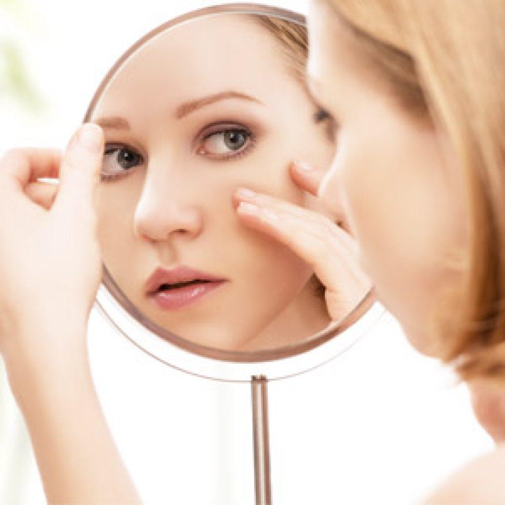 Как избавиться от угрей на коже лица