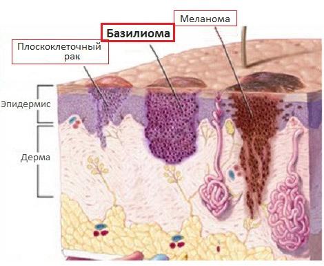 Как образуется базалиома