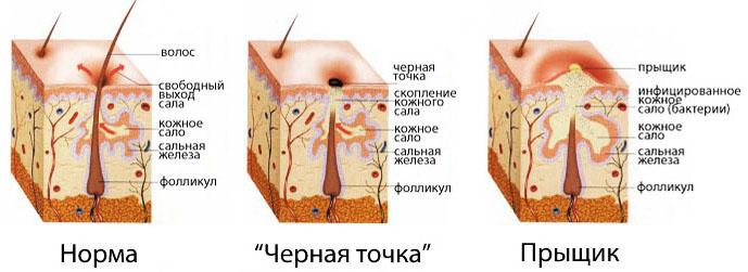 Как образуется воспаление