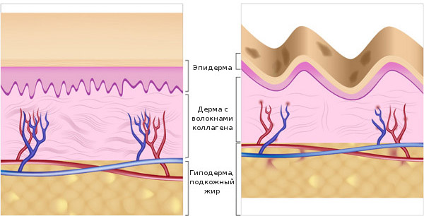 Как образуются морщины
