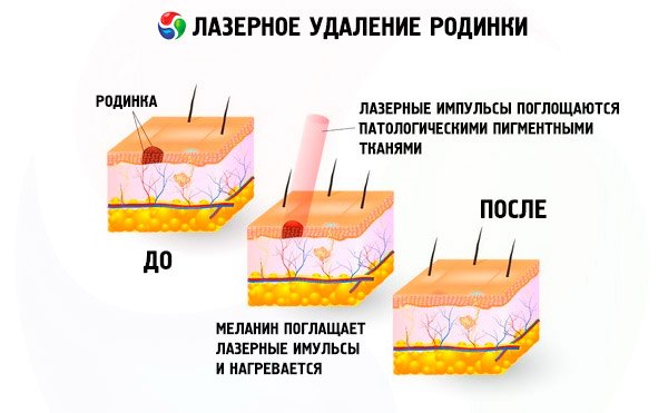 Лазерное удаление невуса