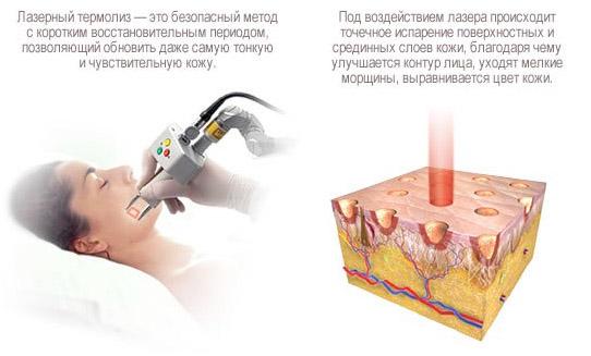 Лазерный термолиз
