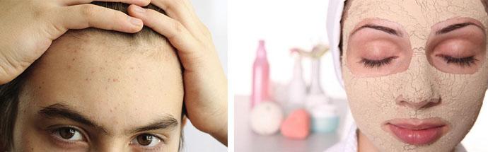 Лечение угрей на лице у подростков в домашних условиях