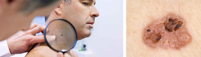 Онкологические заболевания кожи