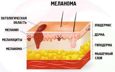 Опасность меланомы