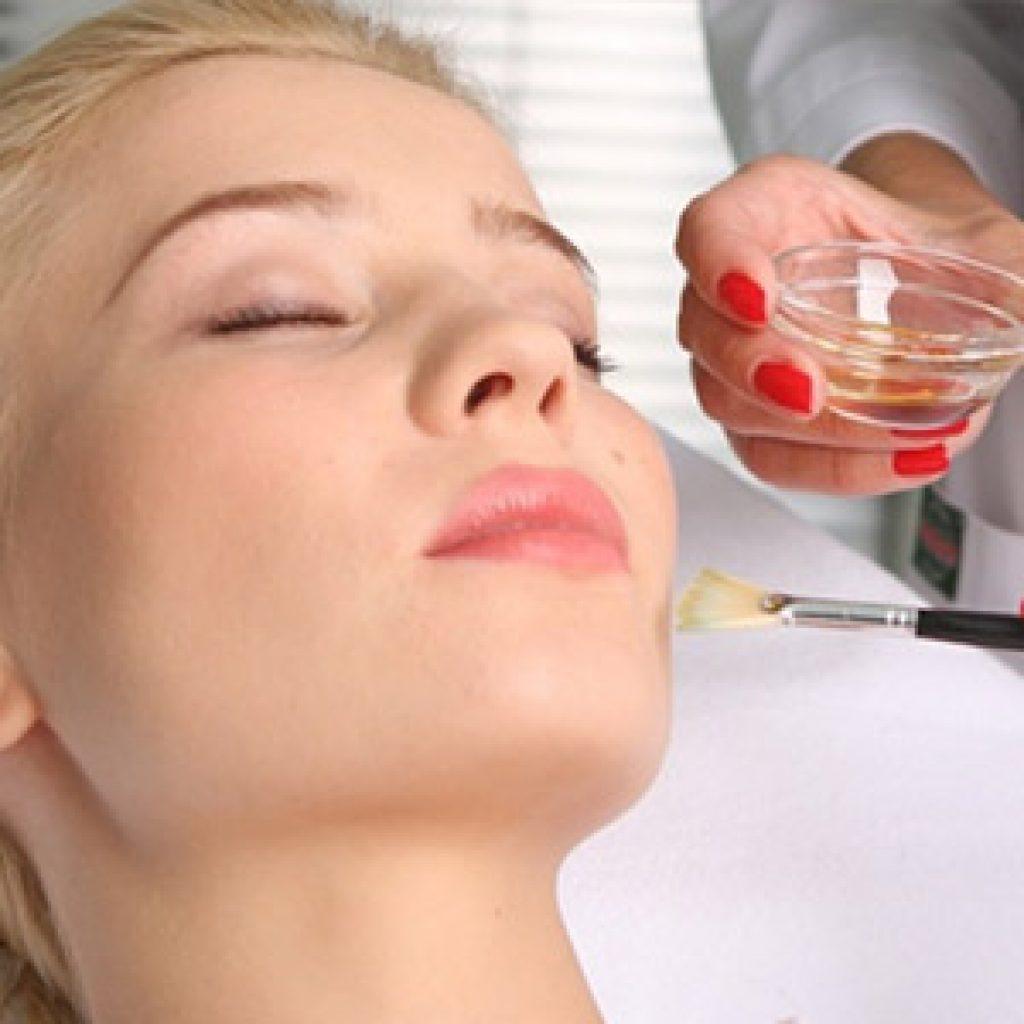 Особенности химического пилинга кожи лица