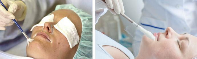 Пилинг и криотерапия