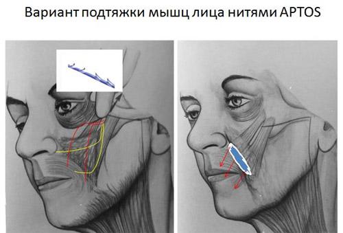 Омоложение лица после 50-60 лет без операции: отзывы, обзор процедур, рецепты популярных масок