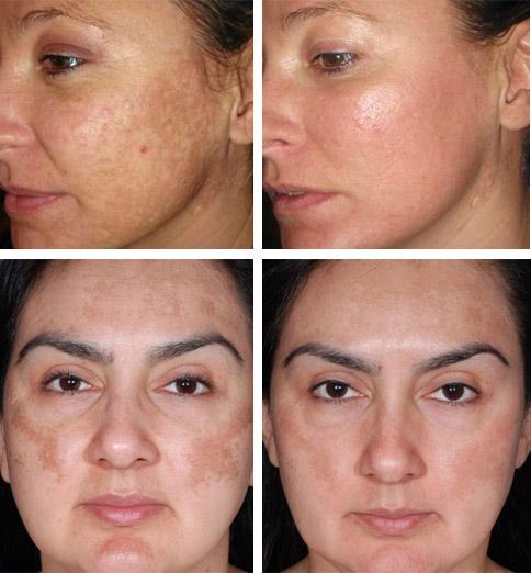 Фото до и после лечения мазью