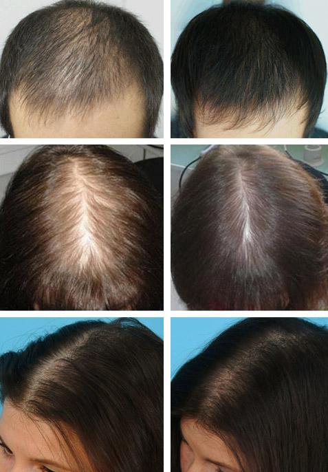 После лечения волос луком