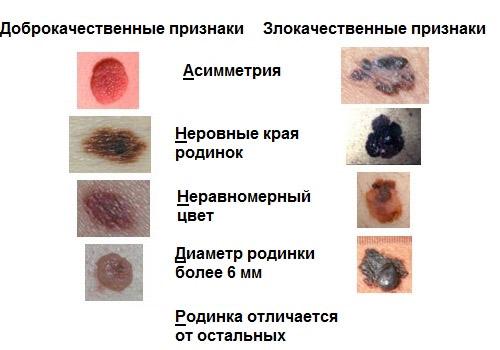 Признаки злокачественных образований