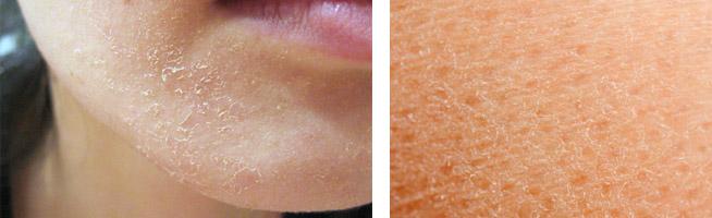 Признаки пересушенной кожи