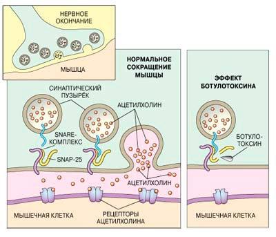 Принцип действия ботулотоксина