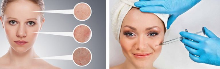 Как сделать кожу на лице ровной и матовой 42