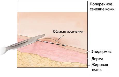 Процесс иссечения невуса