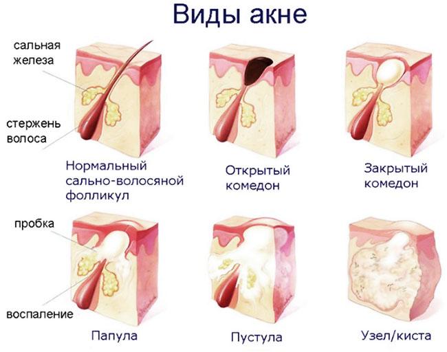 Разновидности акне