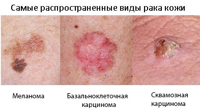Карцинома на лице