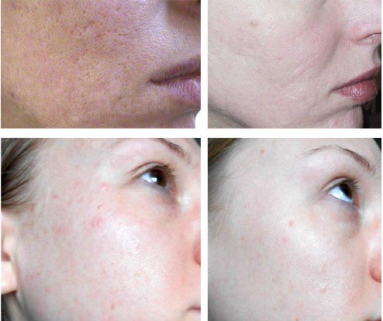 Чем умывать лицо от прыщей без мыла