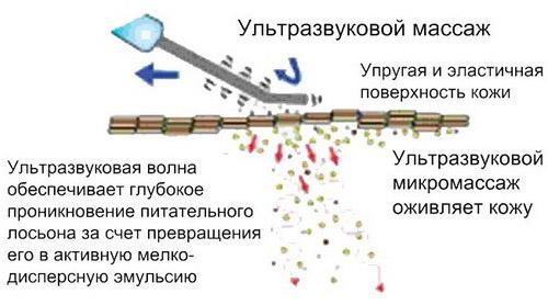 Схема воздействия УЗ-прибора