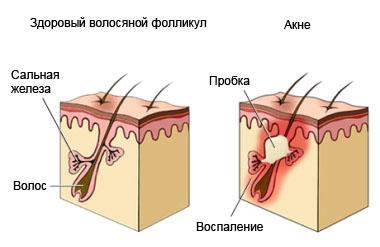 Схема образования акне